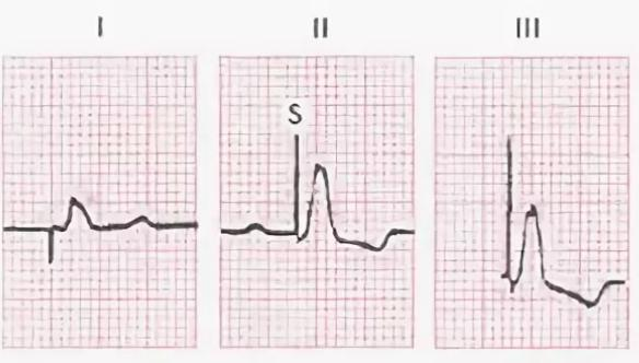 В Китае разработан кардиостимулятор, который работает на энергии сокращений сердца