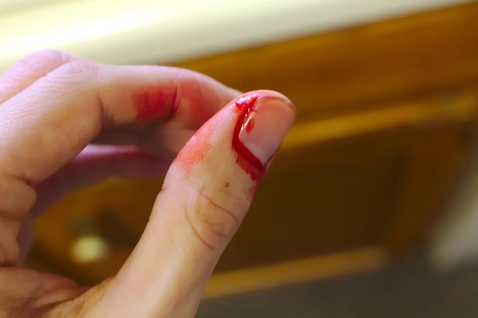 Как можно ускорить заживление раны