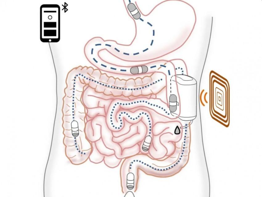 Имплантируемая док-станция и магнитная капсула облегчат жизнь людям с диабетом I типа